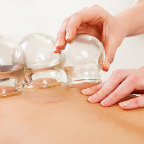 <strong>Cupping</strong>